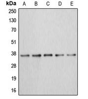CPA1051-100ul - Annexin A3 / ANXA3