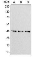 CPA1055-100ul - Apolipoprotein F / Apo F