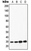 CPA1062-100ul - Apolipoprotein A I / APO AI