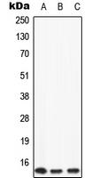 CPA1063-100ul - Apolipoprotein C II / ApoC2