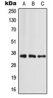 CPA1065-100ul - Apolipoprotein E / Apo E