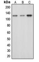CPA1164-100ul - CBL / RNF55