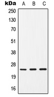 CPA1181-100ul - CD9