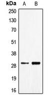 CPA1188-100ul - CD70