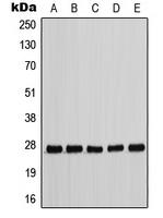 CPA1208-100ul - CDKN1B / KIP1