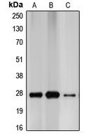 CPA1209-100ul - CDKN1B / KIP1