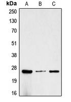 CPA1220-100ul - Chorionic Gonadotropin (hCG)