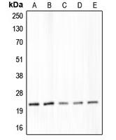CPA1262-100ul - Claudin-4 / CLDN4