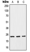 CPA1275-100ul - C-reactive protein (CRP)
