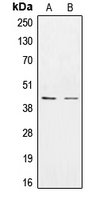 CPA1282-100ul - Casein kinase I epsilon