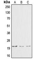 CPA1291-100ul - Cardiotrophin-1