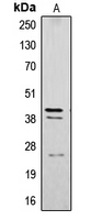 CPA1296-100ul - Cathepsin B