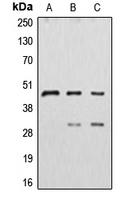 CPA1297-100ul - Cathepsin D