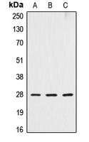 CPA1298-100ul - Cathepsin D