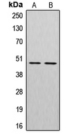 CPA1300-100ul - Cathepsin E