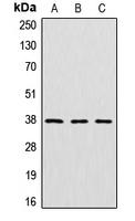 CPA1302-100ul - Cathepsin L2