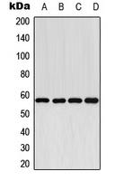 CPA1319-100ul - CYP2E1