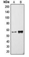 CPA1321-100ul - CYP3A4