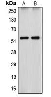 CPA1327-100ul - CYP26A1