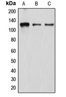 CPA1352-100ul - Atrophin-1