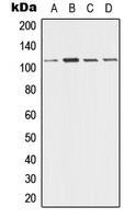 CPA1354-100ul - Desmoglein-3