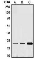 CPA1365-100ul - Ephrin-A1