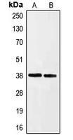 CPA1367-100ul - Ephrin-A3