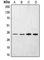 CPA1370-100ul - Ephrin-B3
