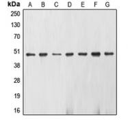 CPA1387-100ul - Neuron specific enolase