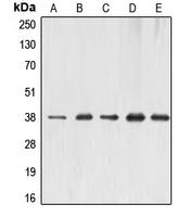 CPA1396-100ul - ERCC1
