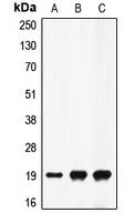 CPA1405-100ul - Prothrombin (F2)