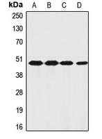 CPA1406-100ul - Thrombin receptor / F2R