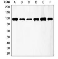 CPA1422-100ul - CD333 / FGFR3