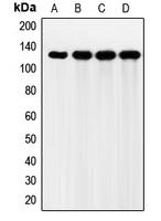 CPA1424-100ul - CD332 / FGFR-2