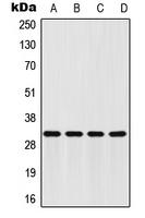 CPA1426-100ul - FHL2 / SLIM3