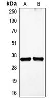 CPA1428-100ul - VEGFD