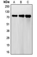 CPA1444-100ul - FSH Receptor