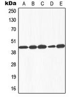CPA1459-100ul - Galactokinase 1