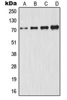 CPA1476-100ul - GCLC / GLCLC