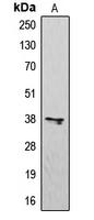 CPA1484-100ul - CD183 / CXCR3