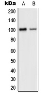 CPA1501-100ul - Glutamate receptor 2 / GLUR2