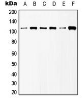 CPA1507-100ul - mGluR6 / GRM6