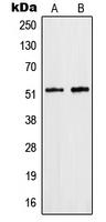 CPA1536-100ul - hnRNP-F / HNRNPF