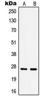 CPA1557-100ul - HSPB1 / HSP27
