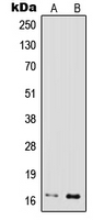 CPA1575-100ul - IFNG / Interferon gamma