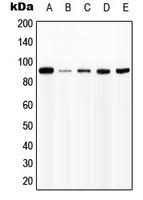 CPA1576-100ul - CD119 / IFNGR1