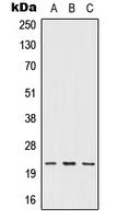 CPA1577-100ul - IFNW1 / Interferon omega-1