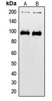 CPA1578-100ul - CD221 / IGF1R