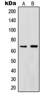 CPA1583-100ul - Protein Red