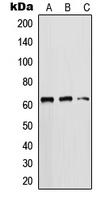 CPA1656-100ul - Cytokeratin 5